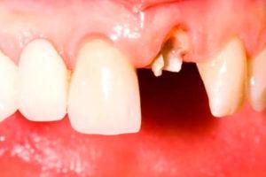 Откололся кусочек зуба. Что делать?