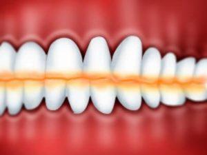 Физиологическая стираемость зубов