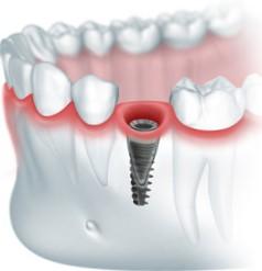 Экспресс имплантация зубов этапы