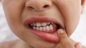 Как защитить ребенка от болезней десен?