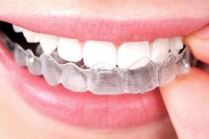 Правильный ортодонт в стоматологии