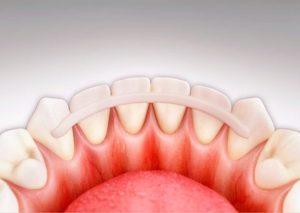 Как сохранить подвижный зуб?