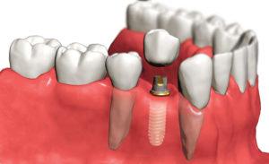 Этапы имплантации зубов за 4 дня